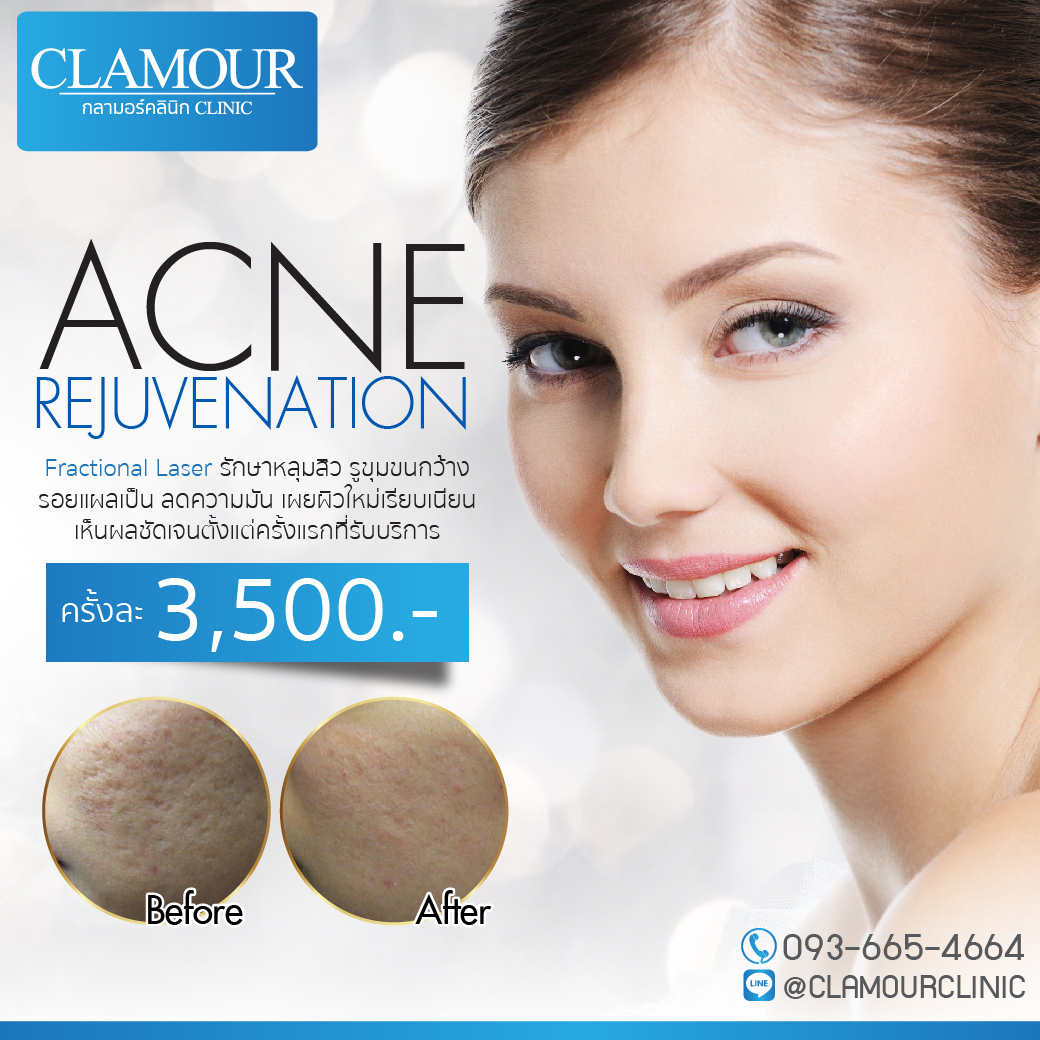 Acne Rejuvenation