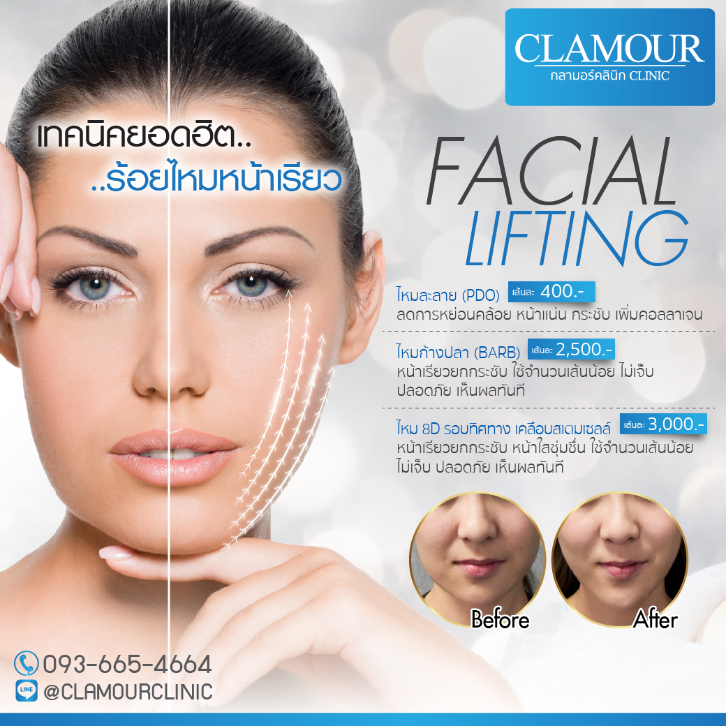 Facial Lifting