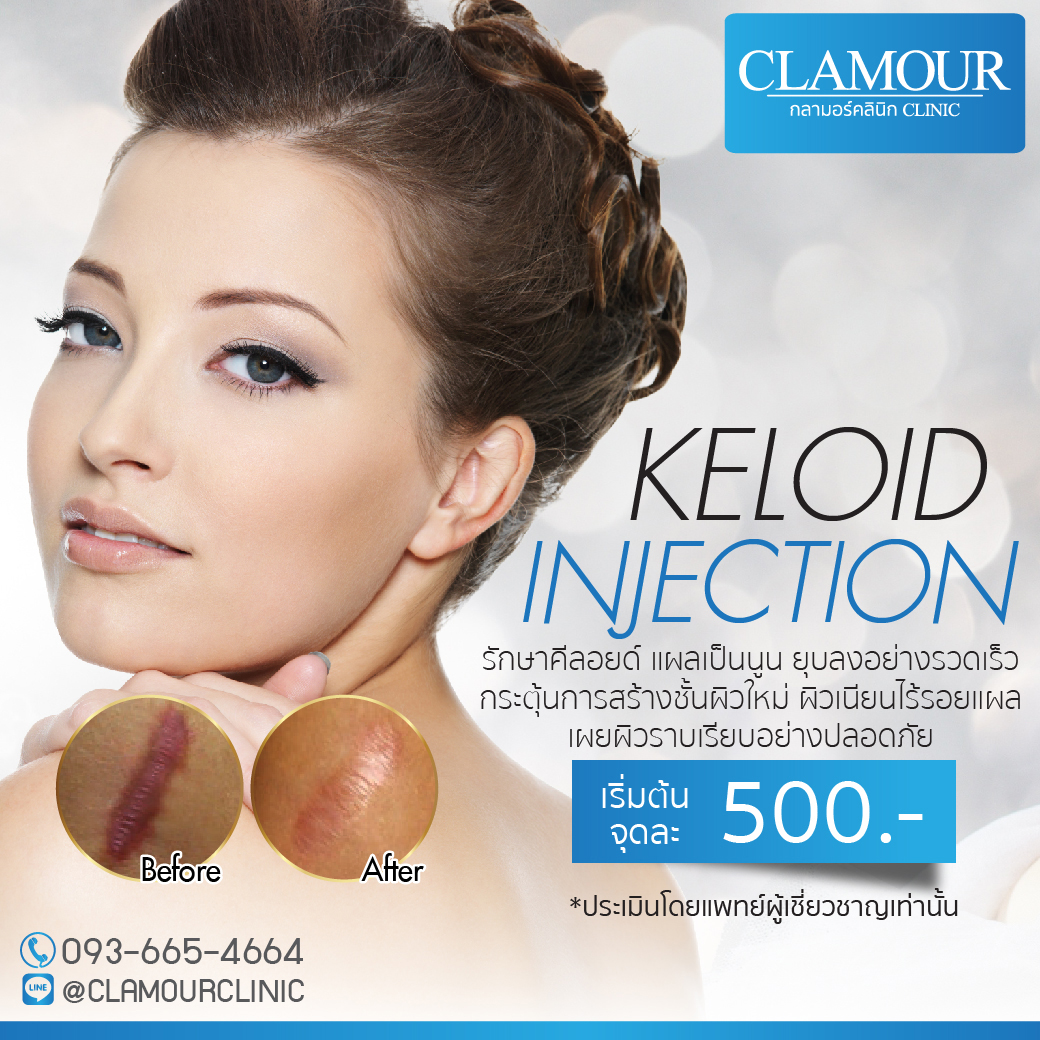 Keloid Injection
